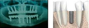 Colocación de los implantes