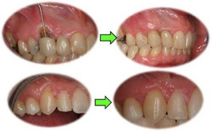 Ejemplo de cirugía plástica gingival