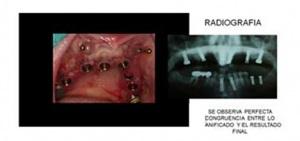 Guía quirúrgica