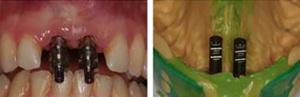 Implantes SLA