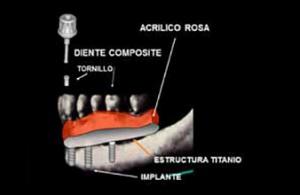 Prótesis Híbrida 2